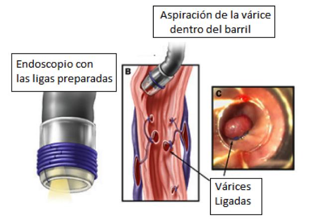 ce bandă elastică în varicoză simptome varicoase la femei pe picioare